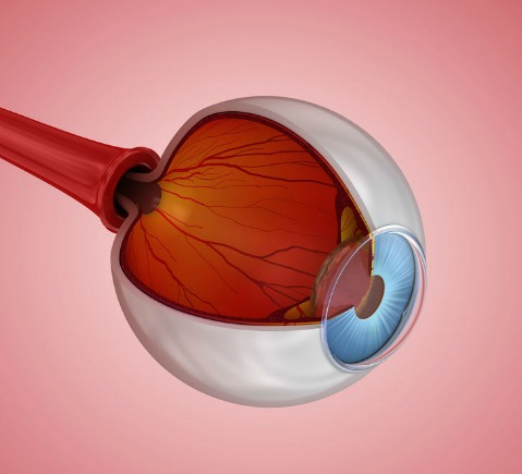 anti vegf for macular degeneration