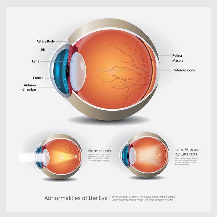 Cataracts and Macular Degeneration