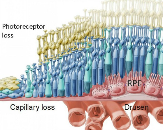 macular degeneration causes