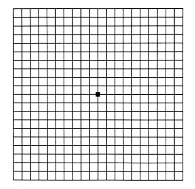 macular degeneration grid