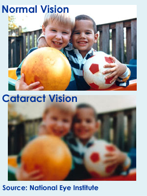 eye cataracts