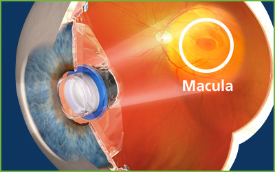 macular degeneration implant