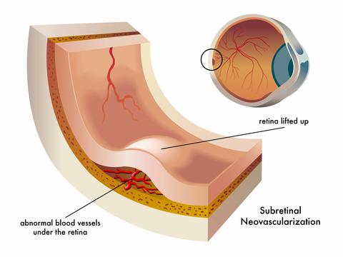 choroidal neovascularization