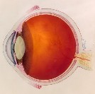 wet macular degeneration treatment