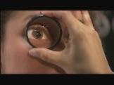 low vision treatment