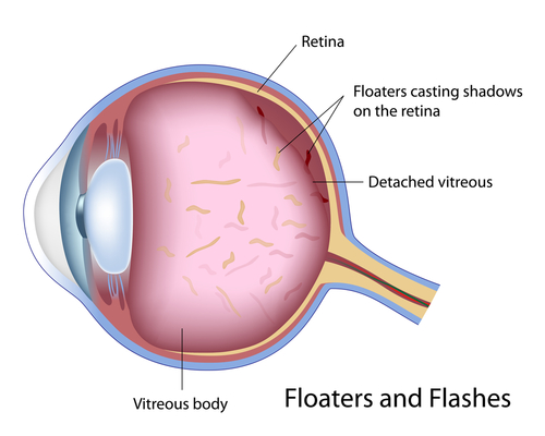 what are eye floaters