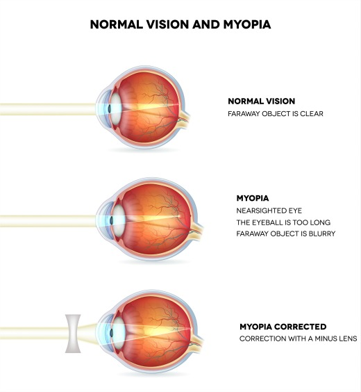myopic macular degeneration