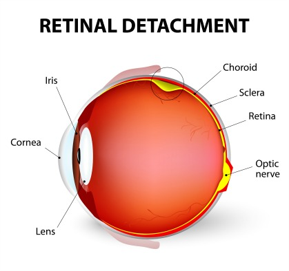 retinal tear symptoms