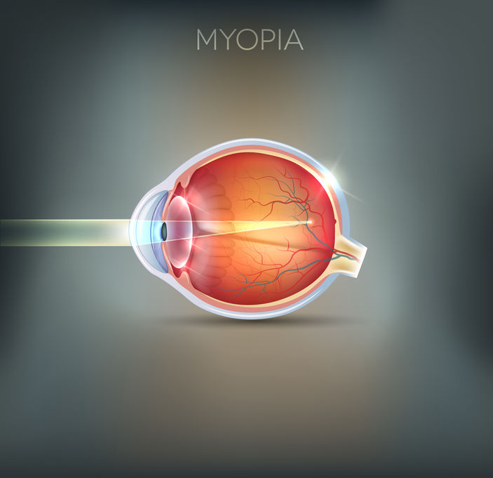 myopic macular degeneration
