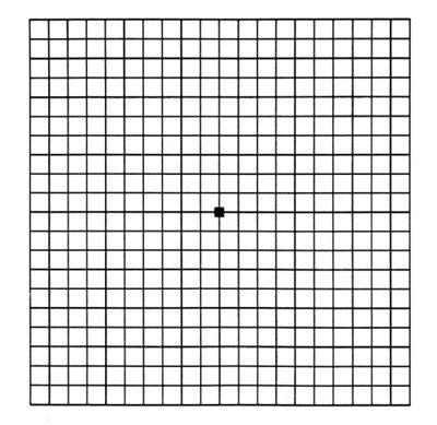 grid test for macular degeneration