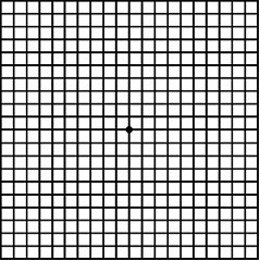 picture regarding Printable Amsler Grid named Macular Degeneration Grid - Observe Your Eyesight At House