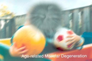 macular degeneration symptoms