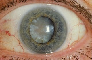 cataract definition