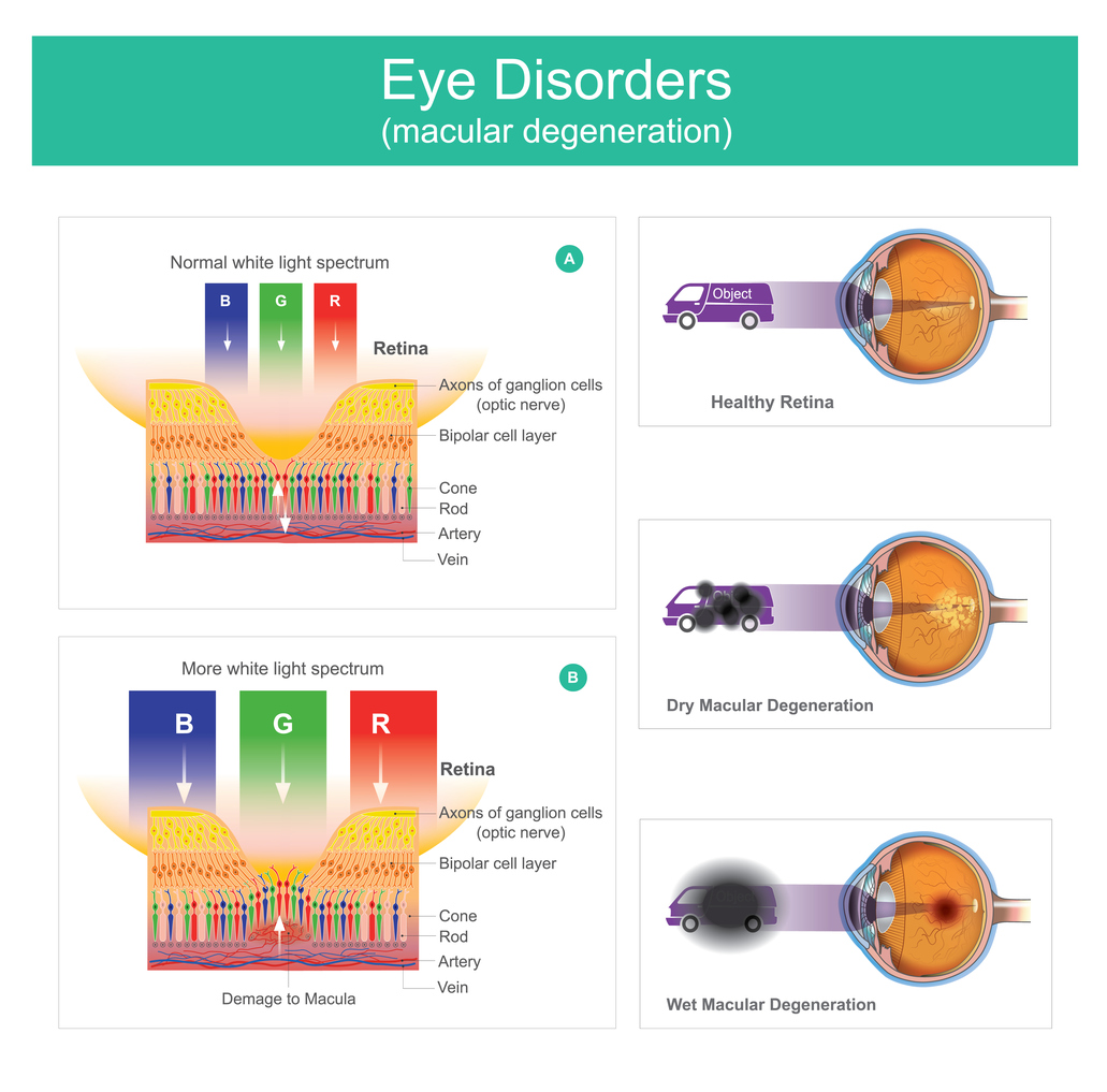 macular degeneration stages