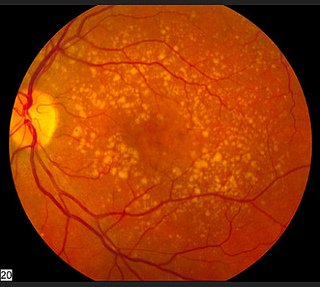 dry to wet macular degeneration