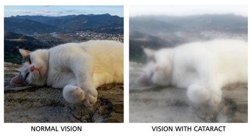 symptoms of cataracts