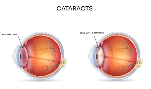 cataract causes, symptoms and prevention